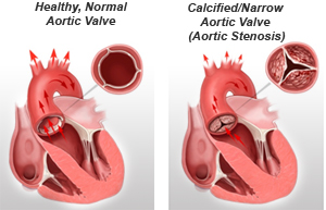 an image of a normal heart and one with calcified and narrow aortic valve