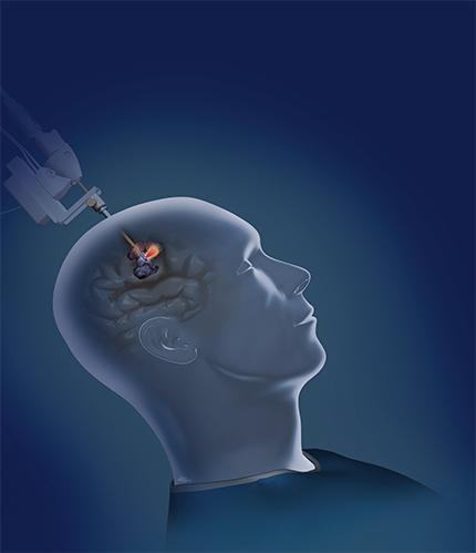 UofL neurosurgeons now providing robotic laser therapy for brain tumors, lesions