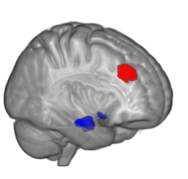 Picture of FMRI data