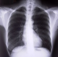 Black and white X-ray of chest, lungs, ribs, heart, spine